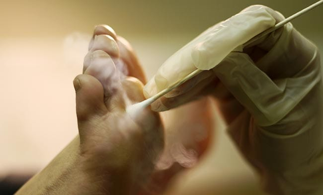 How to Prevent Plantar Warts and Get Rid of Them for Good!