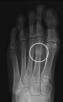 foot stress fracture x-ray