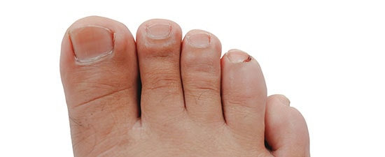 Tips from our Experts: Prevent and Treat Ingrown Toenails at Home