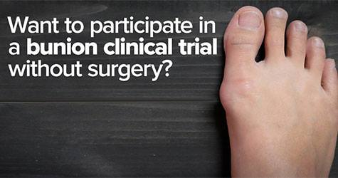 UFAI Now Enrolling Patients for a Unique Bunion Clinical Trial in Los Angeles