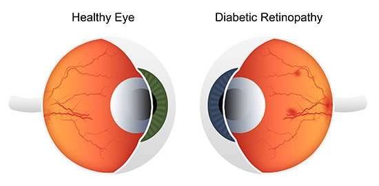 Diabetic retinopathy, Advanced diabetic foot care