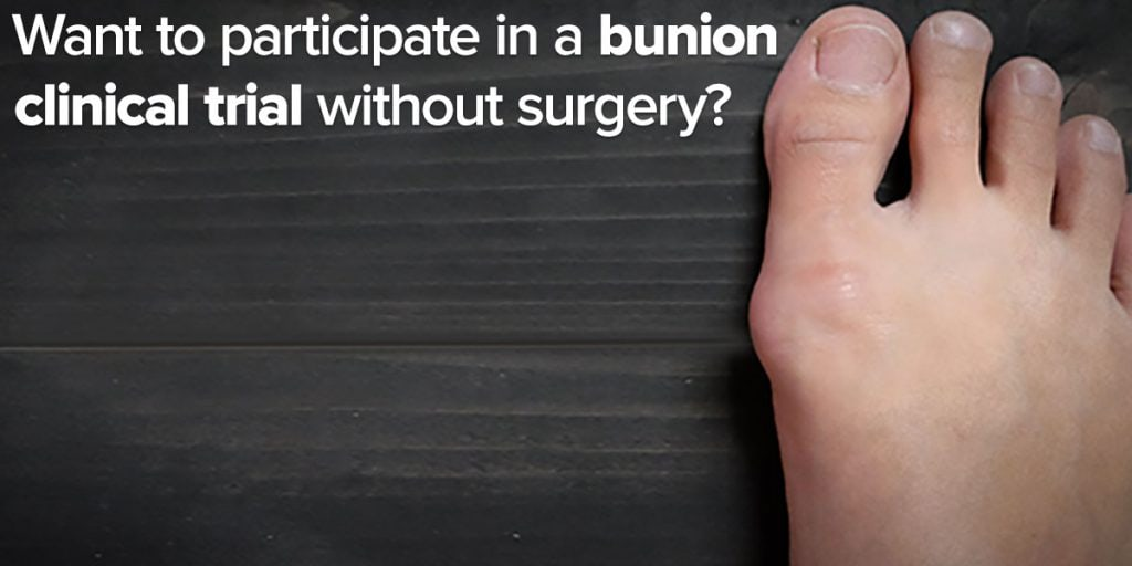 Bunion Clinical Trial Enrolling Patients