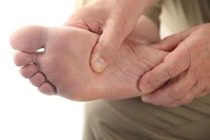 Diabetic Foot Daily Exam, Diabetic Foot Care
