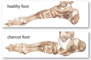 Comparison of a healthy foot and charcot foot