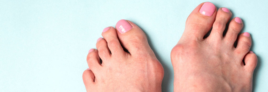 What's the Best Treatment for Bunions? Seeing a Bunion Specialist for Starters. Here's Why