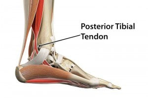 What's the Posterior Tibial Tendon