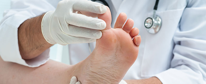 Why Diabetic Foot Exams Are Critically Important