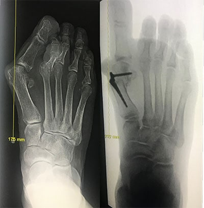 MinVasive Bunionectomy, before and after bunion surgery image