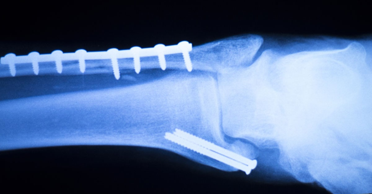 Might Surgically Implanted Metal Screws and Pins Become a Thing of the Past? YES!