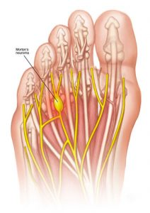 morton's neuroma, ball of foot nerve pain