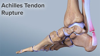 Rupture Achilles Tendon, University Foot and Ankle Institute