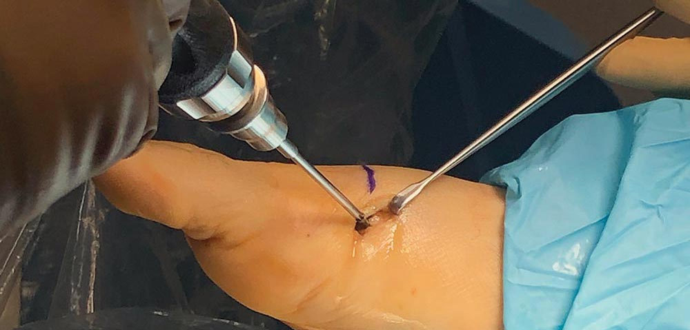 Emerging Advances in Minimally Invasive Bunion Surgery