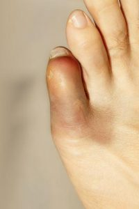 Small Toe / Pinky Toe Pain
