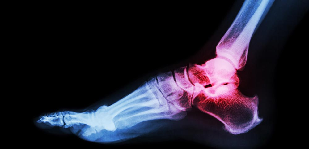 Ankle Cartilage Replacement