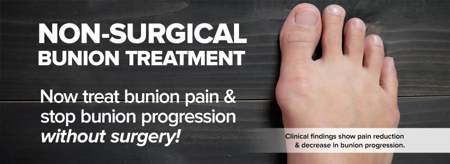 Bunions Treated with Botox