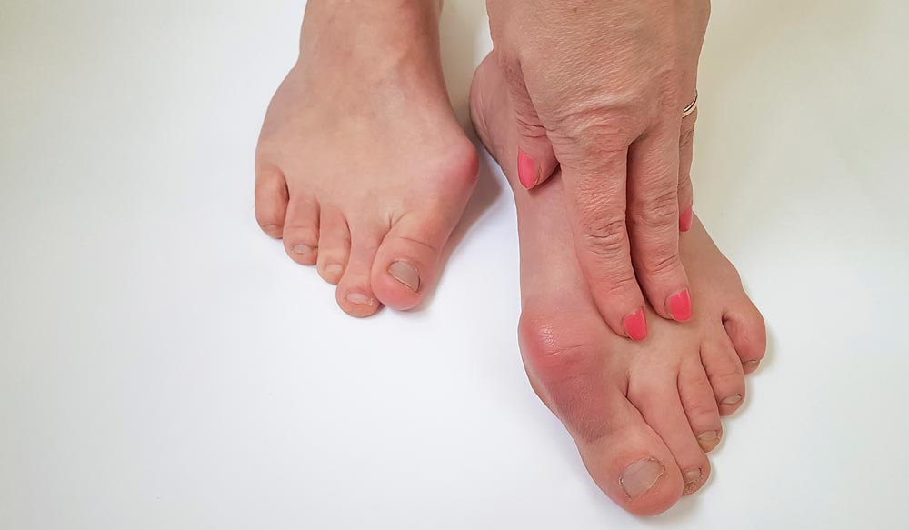 Finally, a Non-surgical Bunion Treatment that Works!