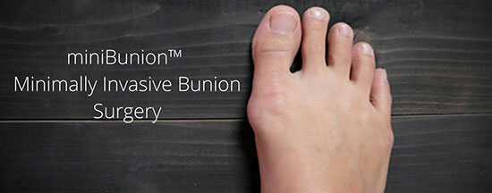 Our state-of-the-art miniBunion™️ minimally invasive bunion surgery. What you need to know.