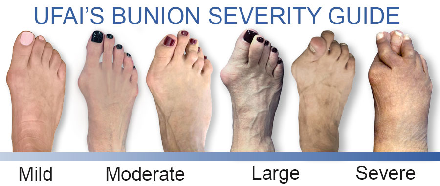 Stages of a Bunion, Bunion Severity Guide, University Foot and Ankle Institute, Bunion Surgeons Los Angeles