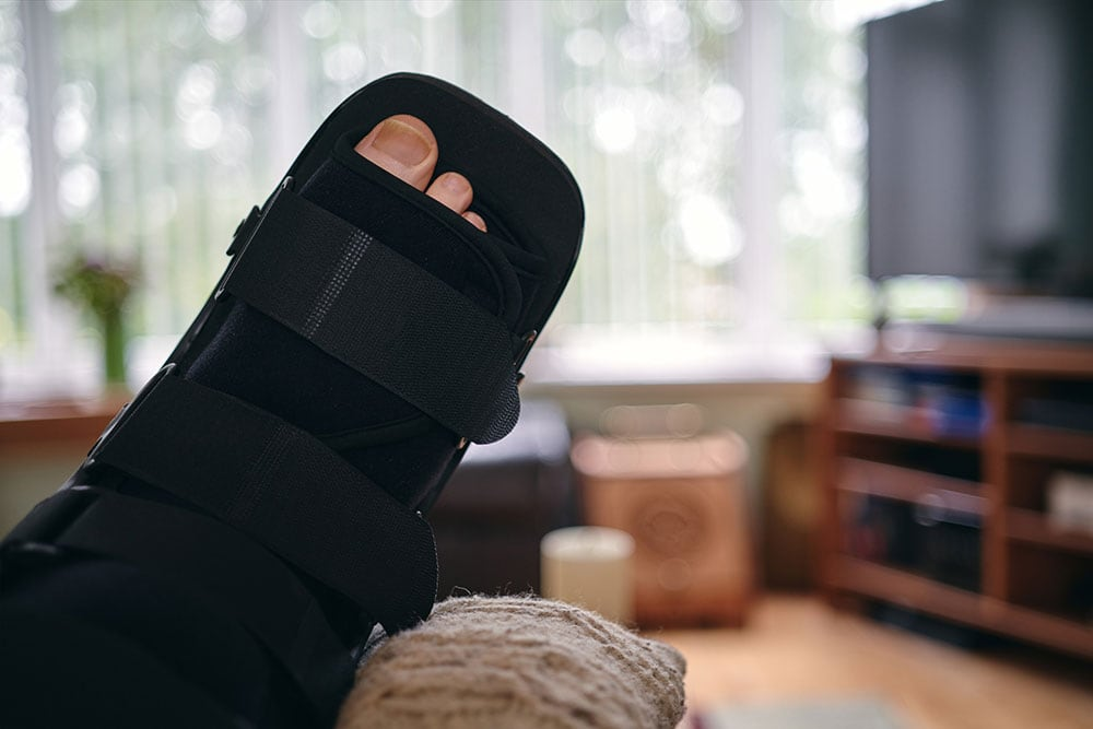 Preparing your home for bunion surgery recovery