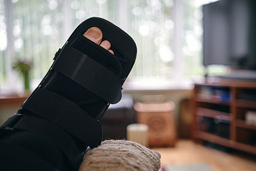 12 Tips to Prepare Your Home for Bunion Surgery Recovery