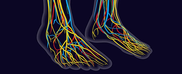 diabetic nerve damage, University Foot and ankle Institute