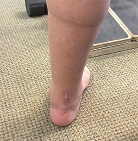 PARS Achilles Rupture Repair Scar Results