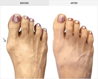 Bunion Surgery Before and After Picture, Advanced Foot and Ankle Care
