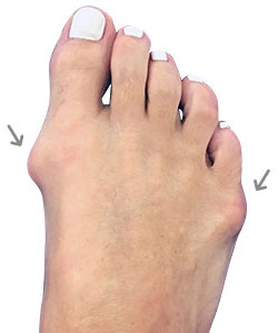 Bunion Surgery, Lapidus Bunionectomy, University Foot and Ankle Instiute
