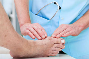 Bunion Clinical trial