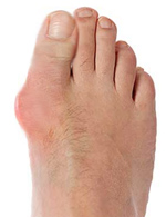 Bunion Surgeon Los Angeles