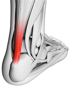 Achilles Tendinosis and Achilles Tendonosis: causes, symptoms and treatments