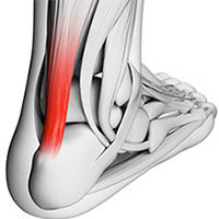 Achilles Tendonitis Treatment, University Foot and Ankle Institute