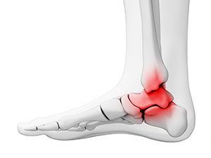 Ankle arthritis treatment, University Foot and Ankle Institute