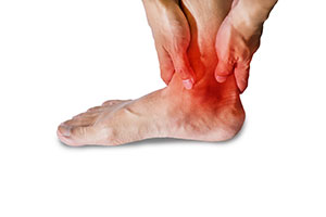 Early stages of Ankle arthritis, University Foot and Ankle Institute
