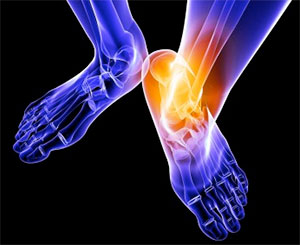 The Epidemic of Ankle Sprains and Why They Should Not Be Ignored