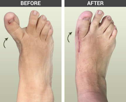 Hallux Varus, Bunion Revision Surgery, University Foot and Ankle Insitute