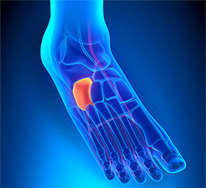 Cuboid Syndrome Treatment, University Foot and Ankle Institute