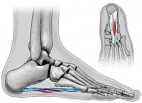 Plantar Fribroma, University Foot and Ankle Institute