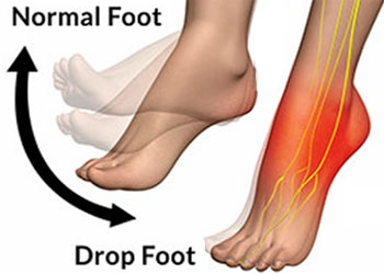 Drop Foot causes symptoms and treatments, University Foot and Ankle Institute Los Angeles
