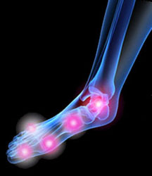 Arthritic Foot - University Foot and Ankle Institute