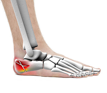 Calcaneal Fracture, University Foot and Ankle Institute