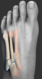 Jones Fracture, Fifth metatarsal fracture, University foot and ankle institute