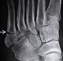 Jones Fracture, University Foot and Ankle Institute