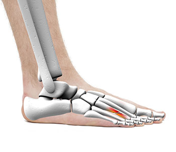 Metatarsal Fracture Treatments, University Foot and Ankle Institute