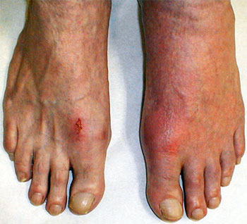 Treating a gout attack, University Foot and Ankle Institute