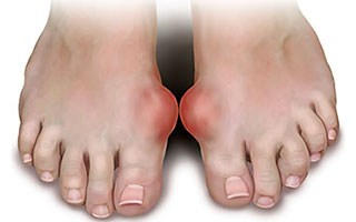 Gout Pictures, Gout in big Toe, University Foot and Ankle Institute