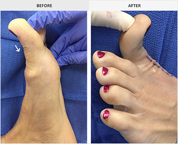 Hallux rigidus before and after, university foot and ankle institute