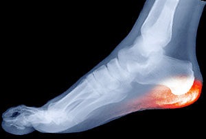 Calcaneal Apophysitis, Severs Disease, Univeristy Foot and Ankle Institute