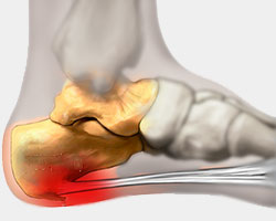 Heel Spur Syndrome, Achilles Heel Spur, University foot and Ankle Institute Los Angeles