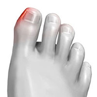 Ingrown toenail treaments